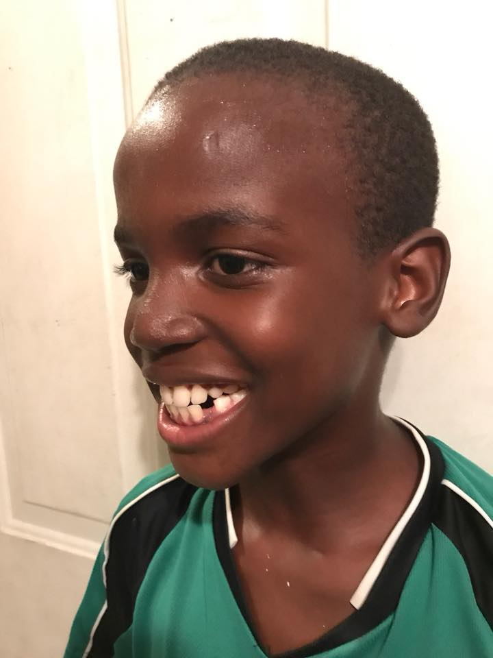 danois lost tooth 2017