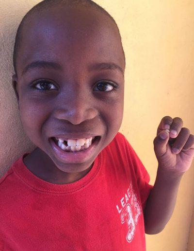 jon-carey-tooth_opt