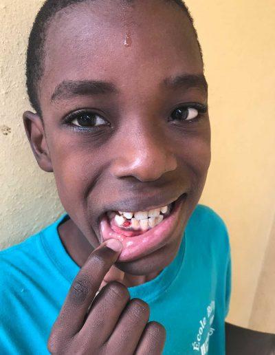 nickenson-teeth-2018